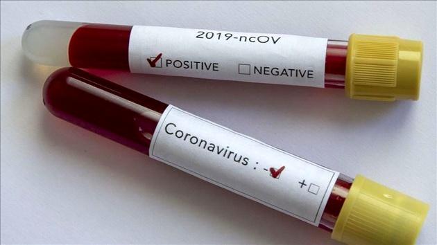مثبت بودن تست 2 بیمار مبتلا به کرونا در لرستان